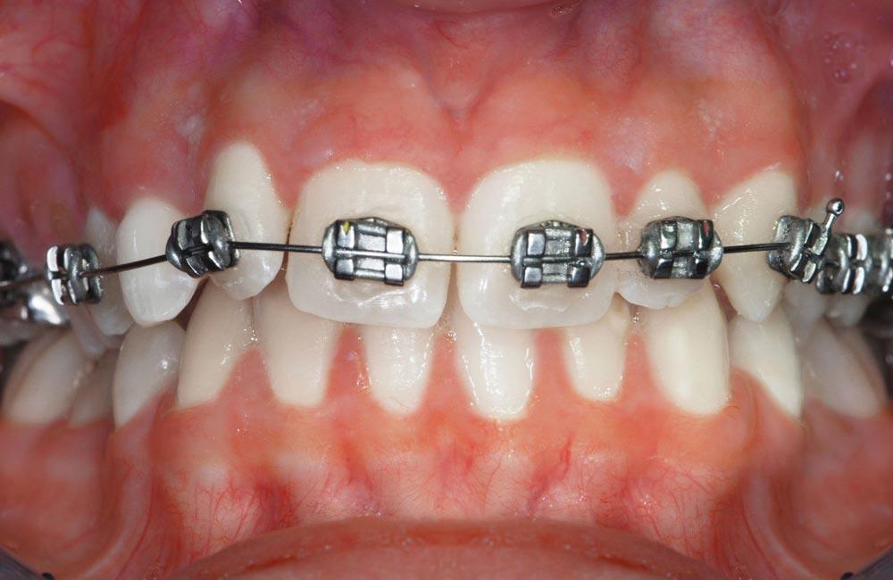 Ortodonzia-servizi