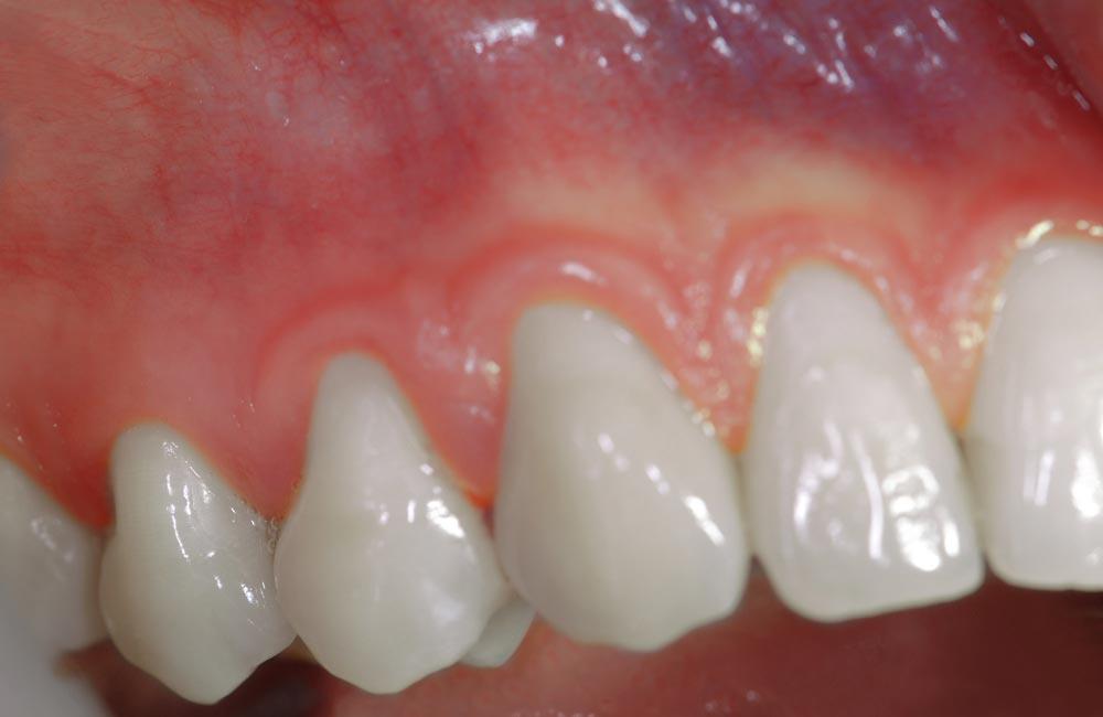 parodontologia-servizi