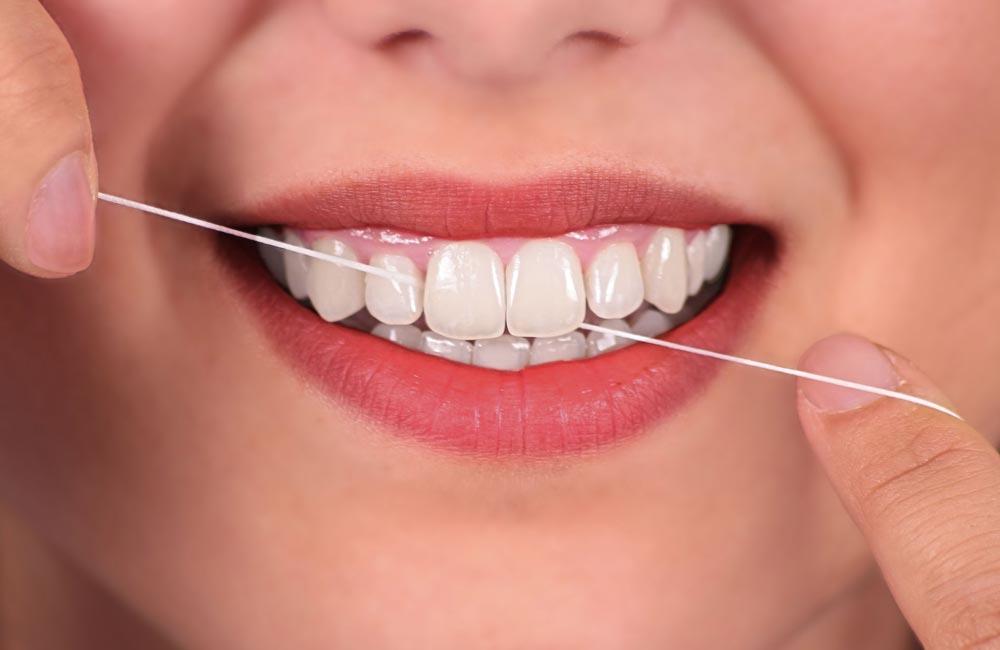 Igiene_orale-servizi