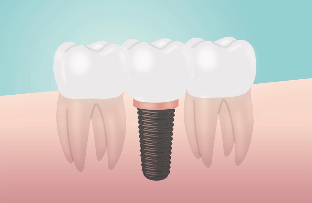 Implantologia-servizi