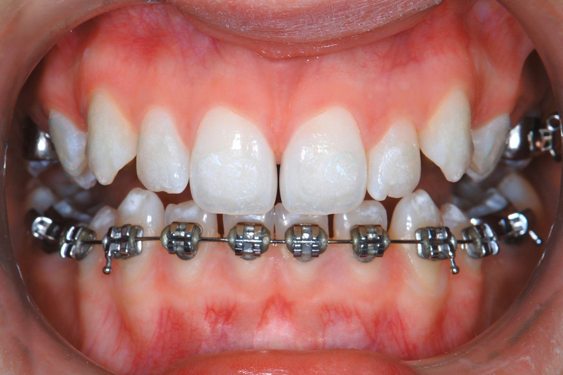 Ortodonzia-studio-vincenzi