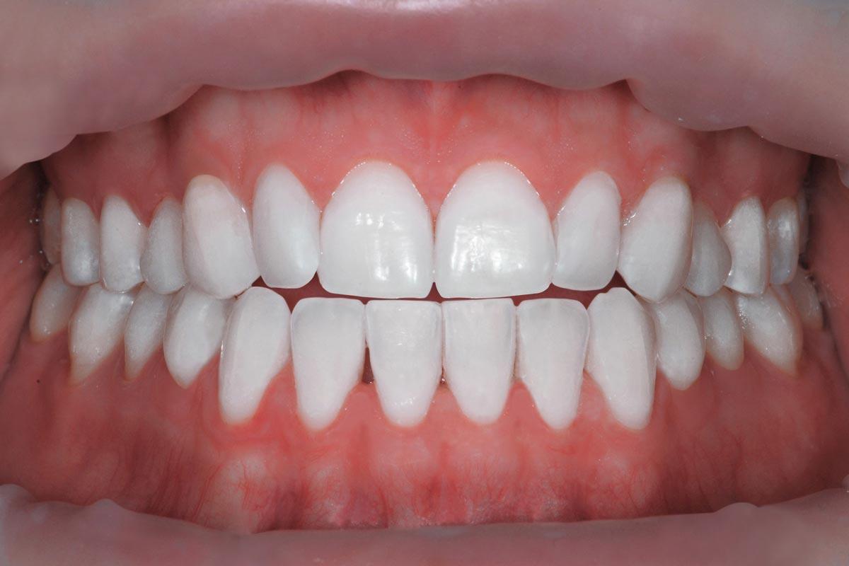 Sbiancamento-studio-vincenzi-medicina-orale