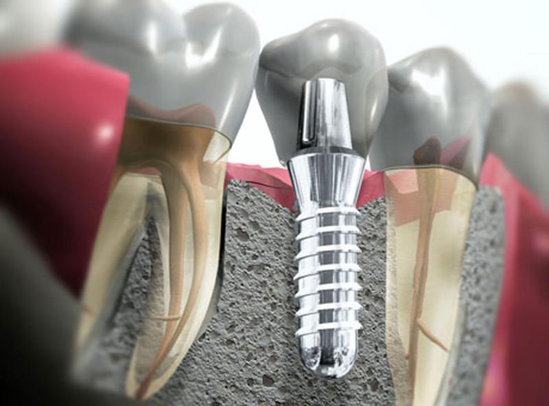 implantologia-studio-vincenzi-promozione